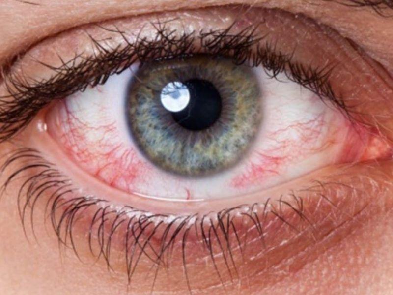 Отличия и лечение синдрома сухого глаза
